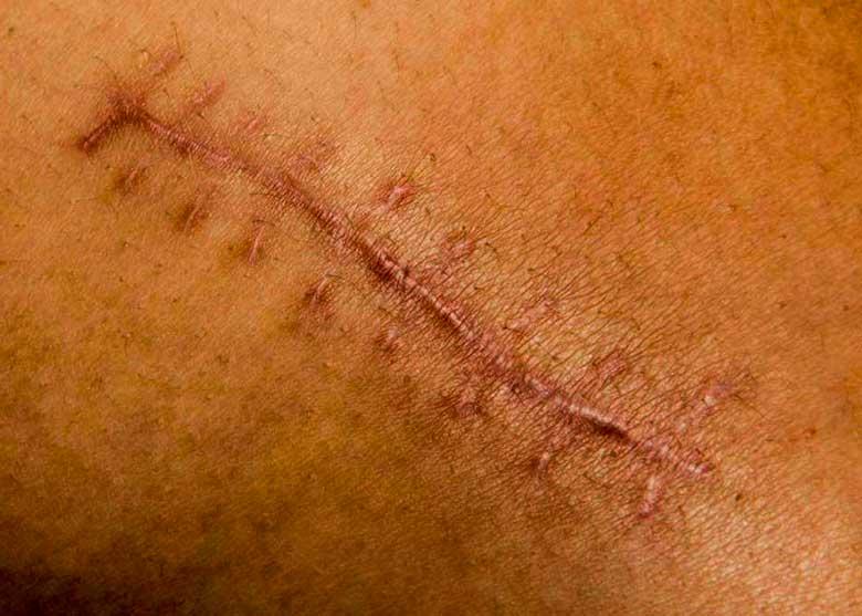 cicatriz4
